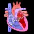 Che cos'è l'infarto?